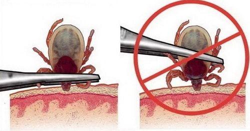 Как правильно вытащить клеща с помощью щипцов