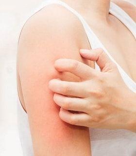Симптомы укусов постельных клопов и как они проявляются