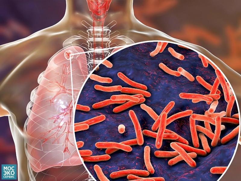 Туберкулёз