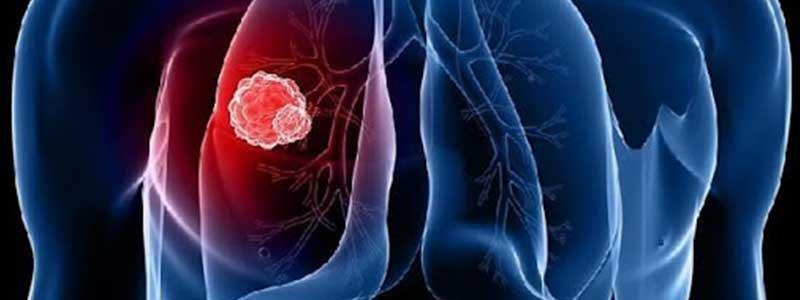 Туберкулёз - опасная болезнь